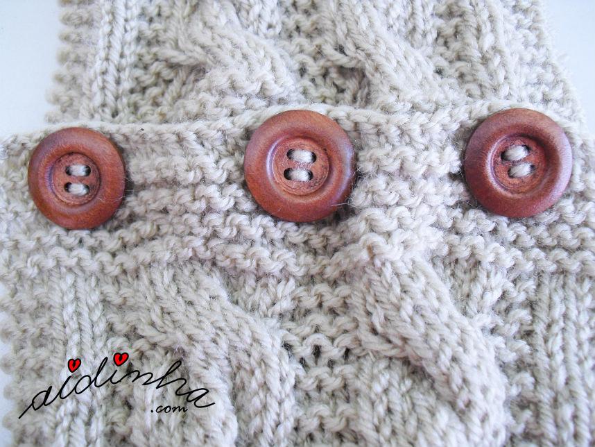 Foto dos botões das caneleiras em tricô